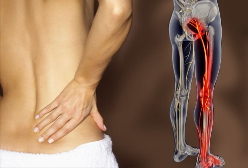 Solutions for Sciatica