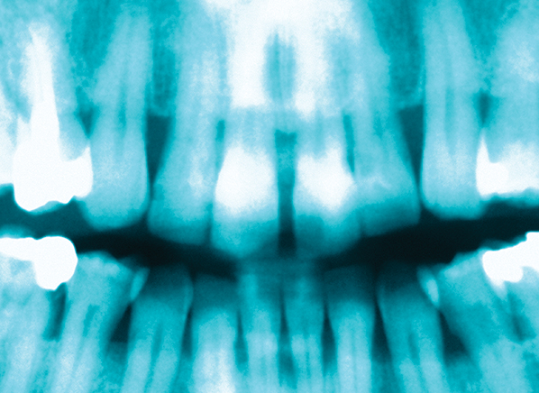 2 dental x ray