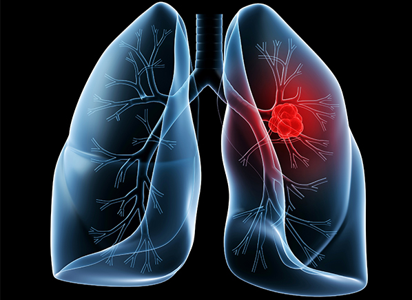 5 Lung Cancer